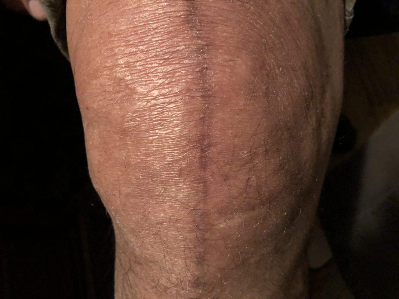 Zaf's scar